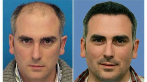 Eyebrow Hair Transplant Mind Blowing Results - YouTube