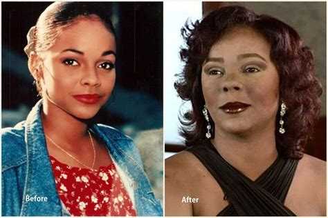 Top 10 Worst Celebrity Plastic Surgery Disasters from